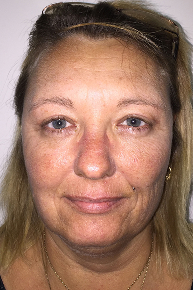 Blepharoplasty Post-op