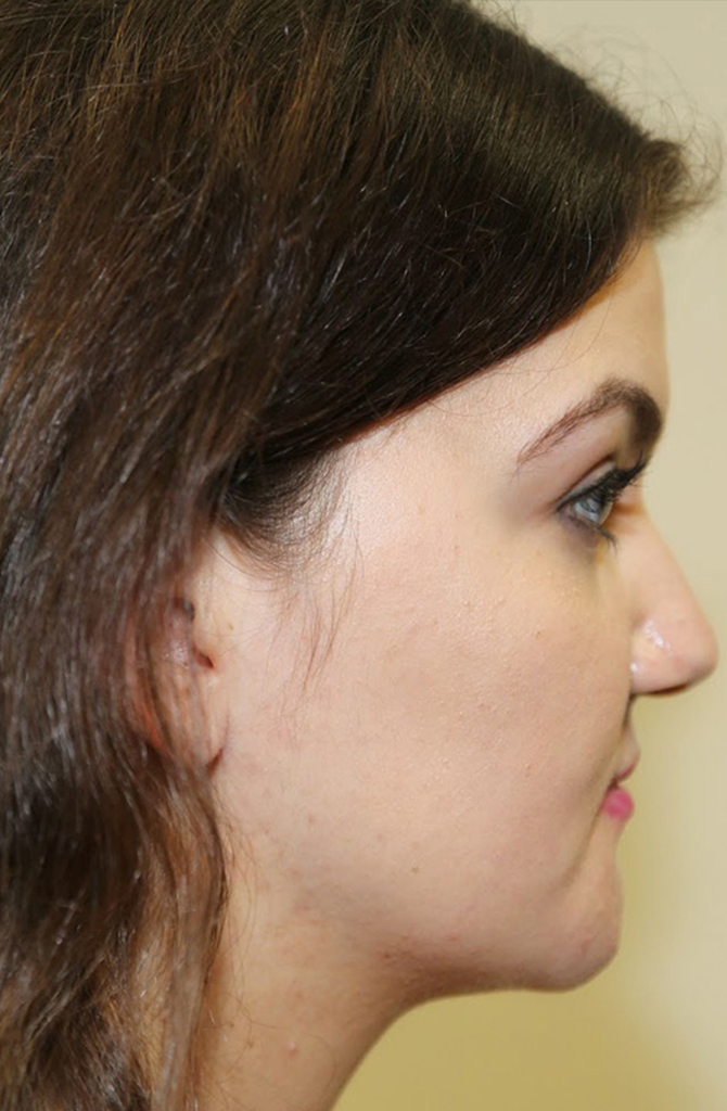 Chin Reduction Post-op
